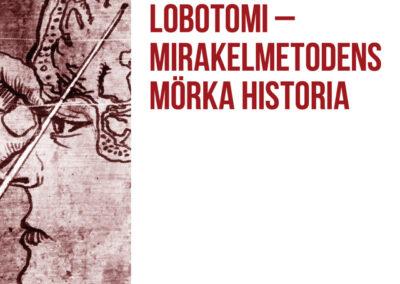 Lobotomi – Mirakelmetodens mörka historia